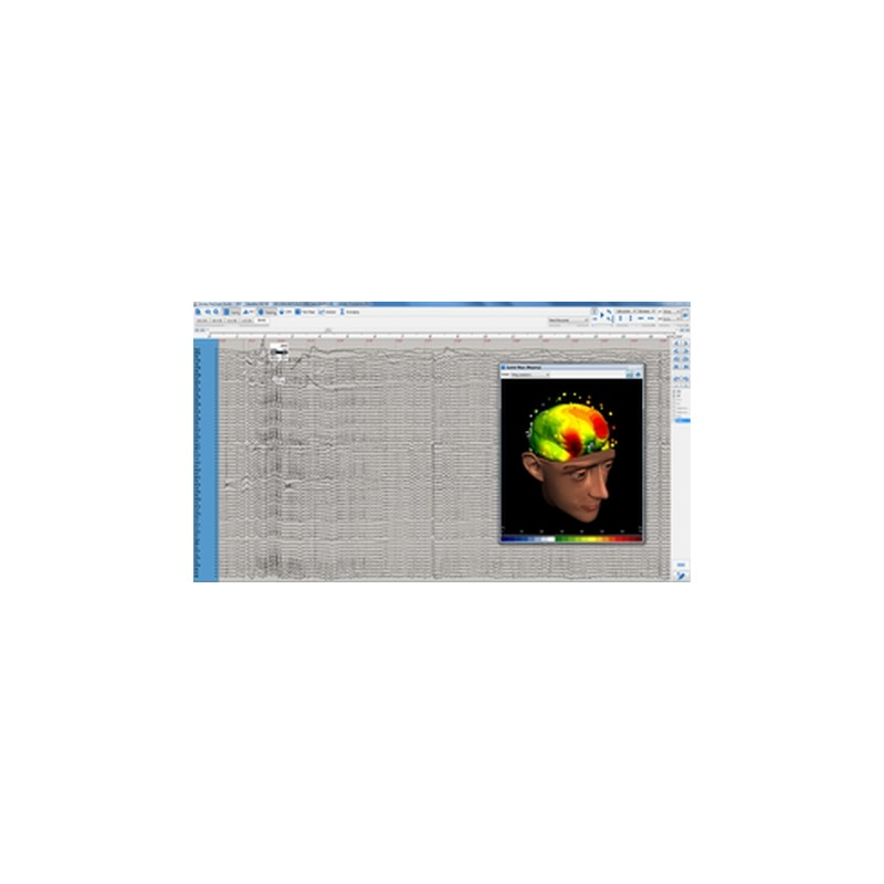 EEG - mapping 3D